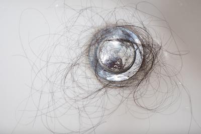 全身脱毛症って何?全身脱毛との違いを徹底解説!