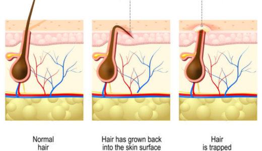 埋没毛とは?原因や皮膚科で治療しなくても症状を軽減できる方法を紹介