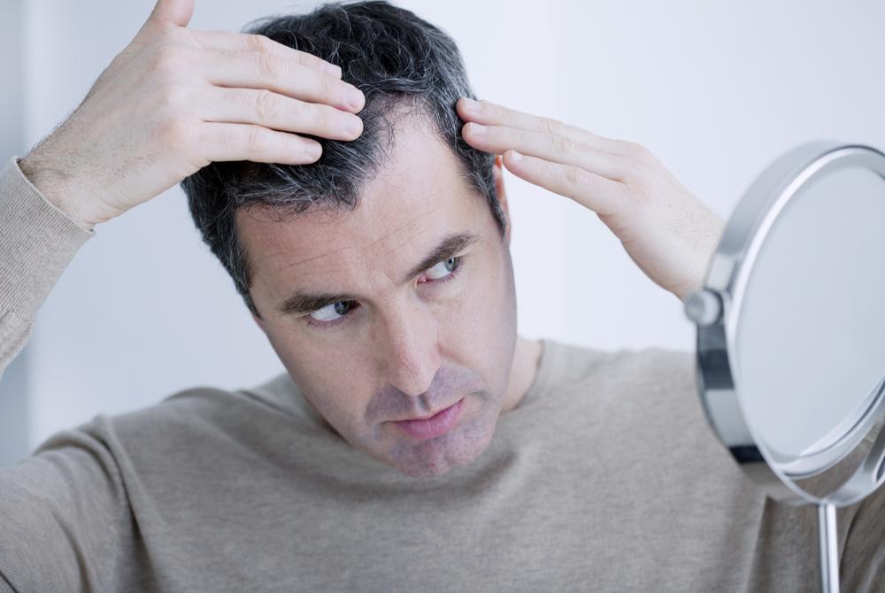 男性向け育毛剤とは?種類・機能など気になるポイントについて調べてみました
