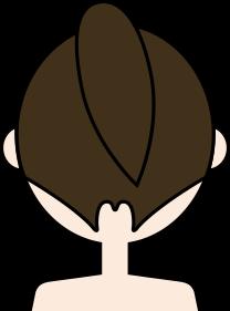うなじ脱毛